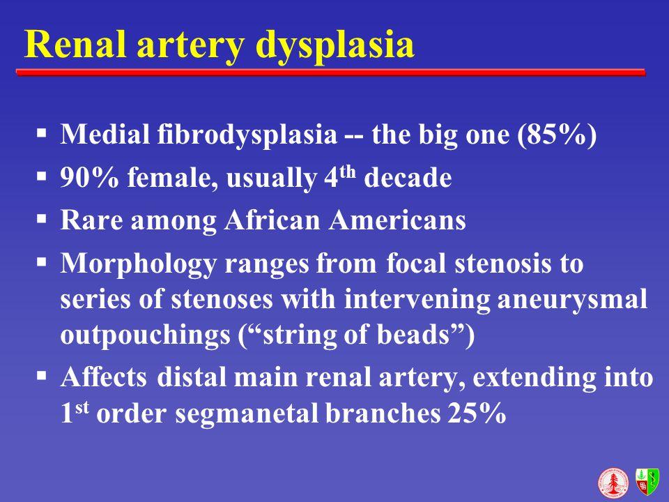 Renal artery dysplasia