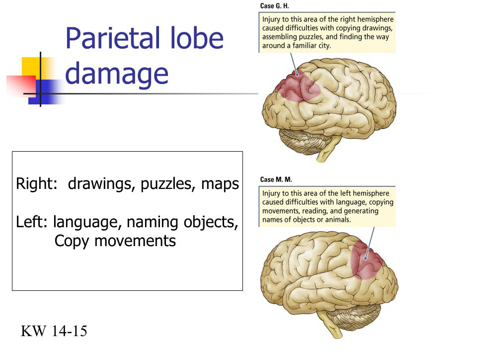 Parietal lobe damage Right: drawings, puzzles, maps
