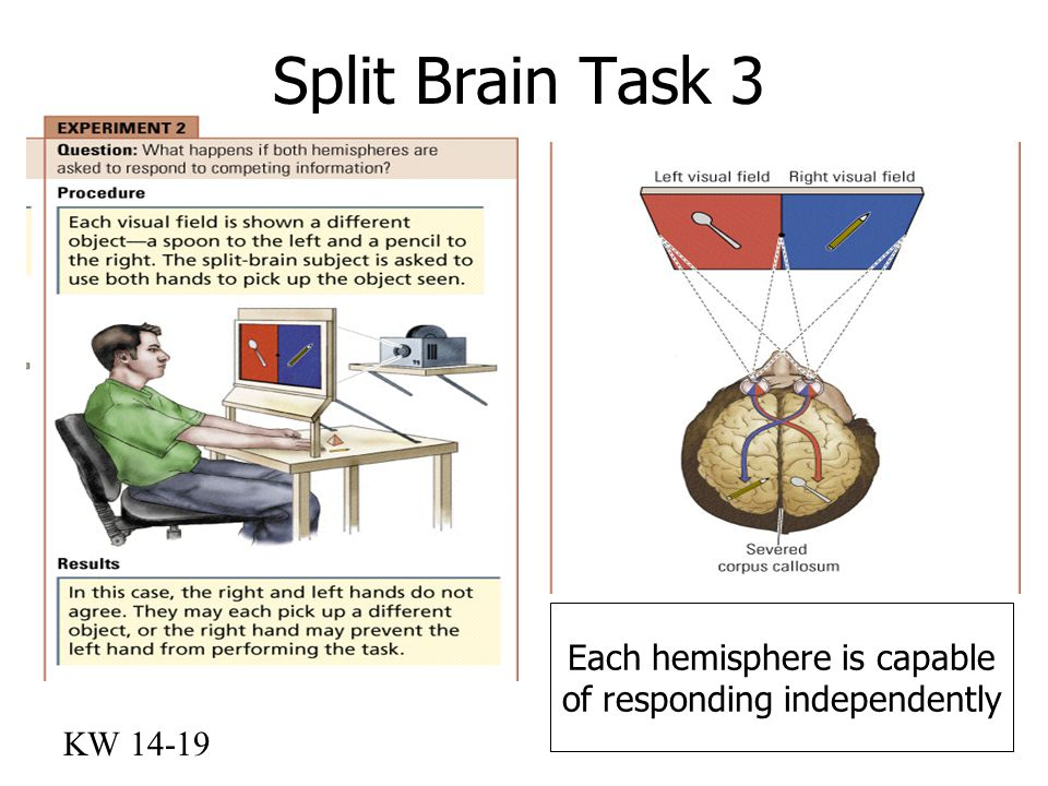 Split Brain Task 3 Each hemisphere is capable