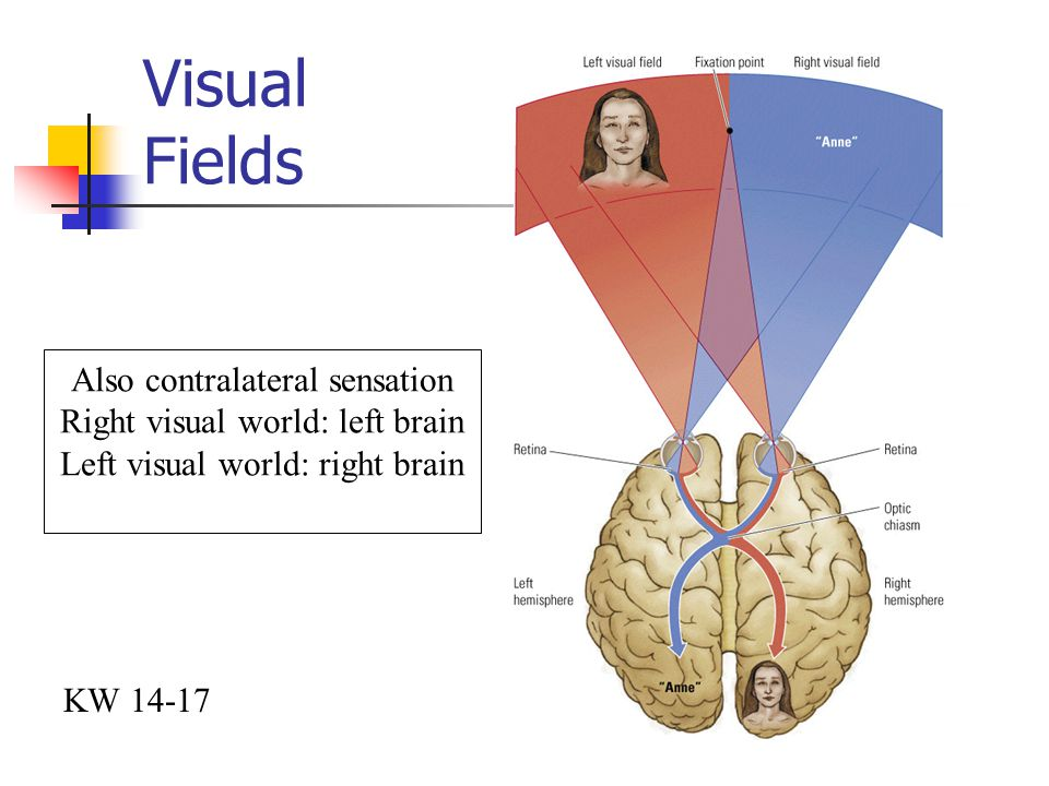 Visual Fields Also contralateral sensation