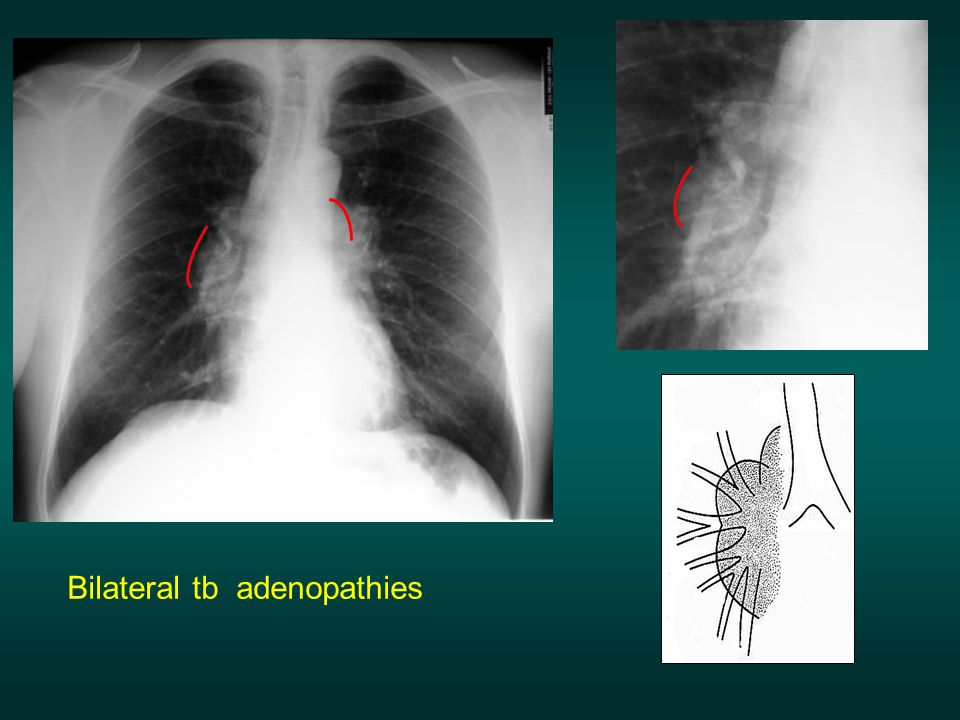 Bilateral tb adenopathies