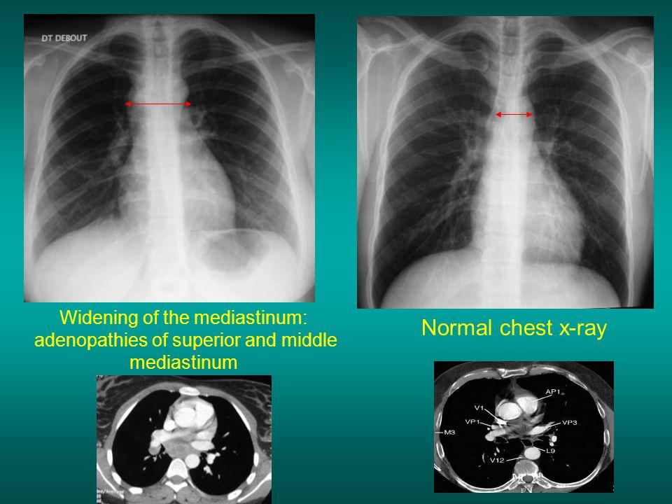 Widening of the mediastinum: adenopathies of superior and middle mediastinum