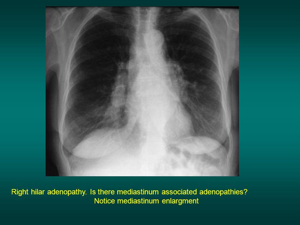 Notice mediastinum enlargment