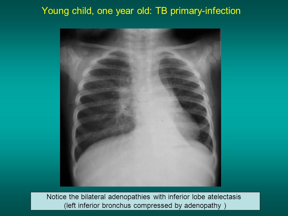 Young child, one year old: TB primary-infection