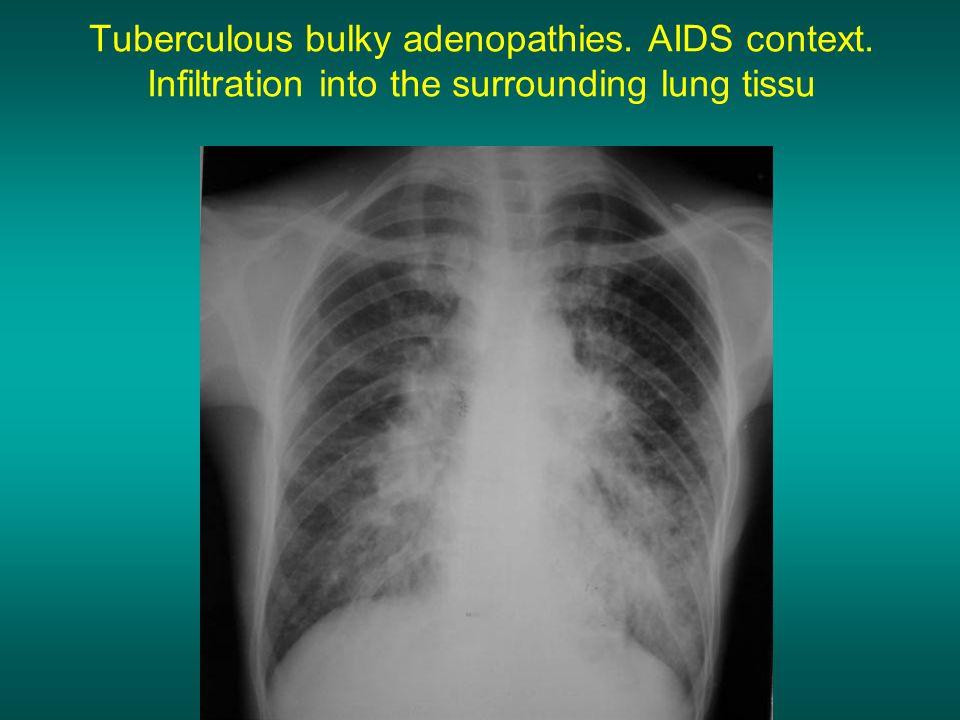 Tuberculous bulky adenopathies. AIDS context