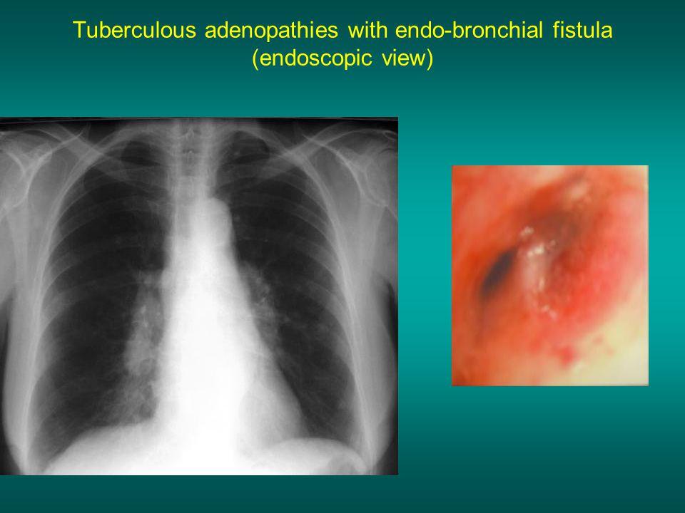 Tuberculous adenopathies with endo-bronchial fistula (endoscopic view)