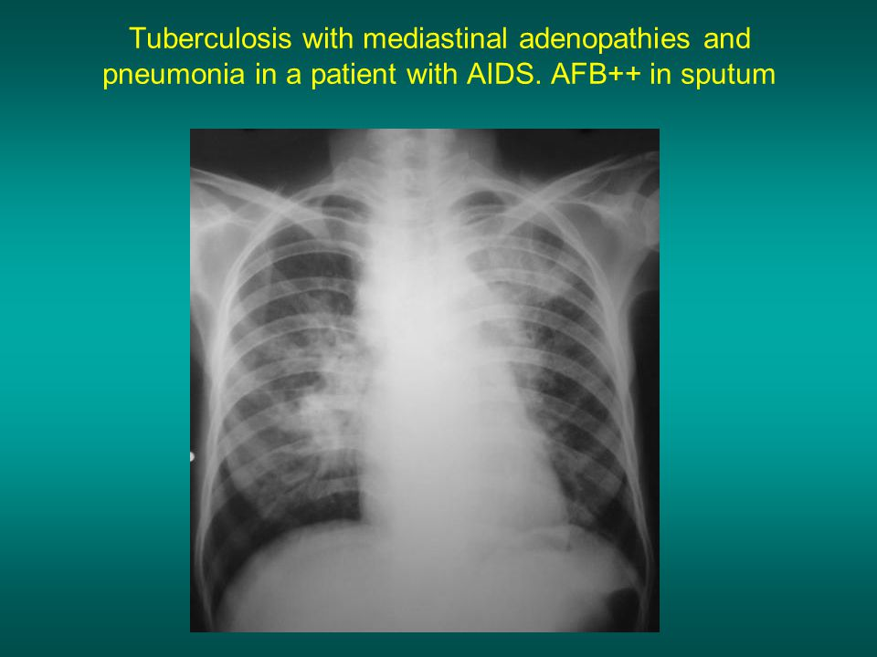 Tuberculosis with mediastinal adenopathies and pneumonia in a patient with AIDS. AFB++ in sputum