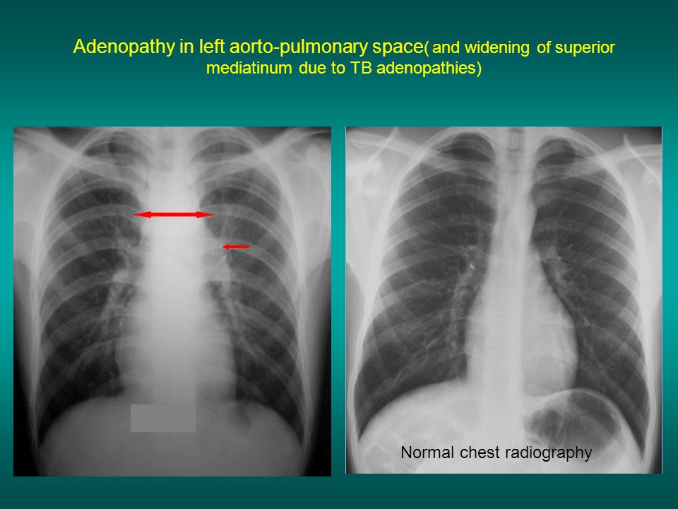 Normal chest radiography