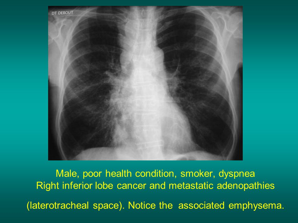 Male, poor health condition, smoker, dyspnea Right inferior lobe cancer and metastatic adenopathies (laterotracheal space).