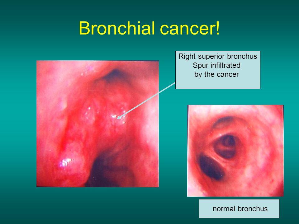 Right superior bronchus