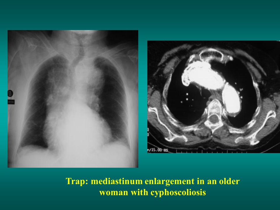 Trap: mediastinum enlargement in an older woman with cyphoscoliosis
