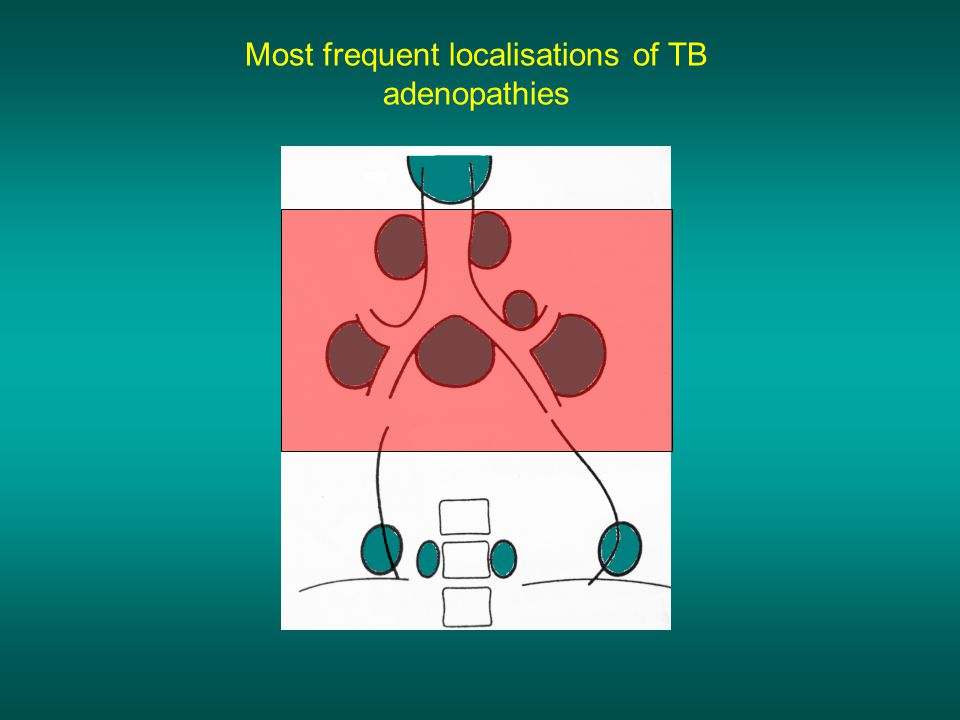 Most frequent localisations of TB adenopathies