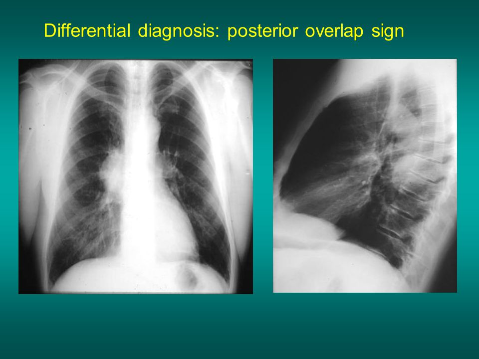 Differential diagnosis: posterior overlap sign