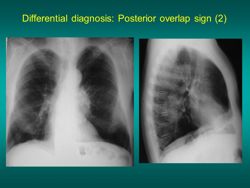 Differential diagnosis: Posterior overlap sign (2)