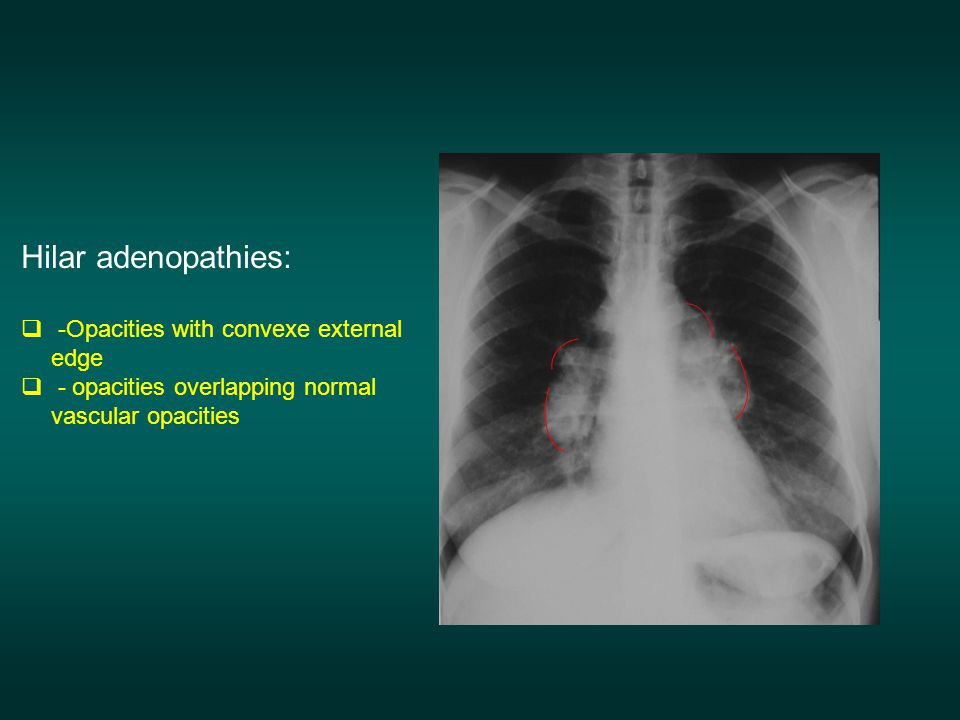 Hilar adenopathies: -Opacities with convexe external edge