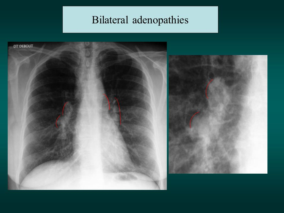 Bilateral adenopathies