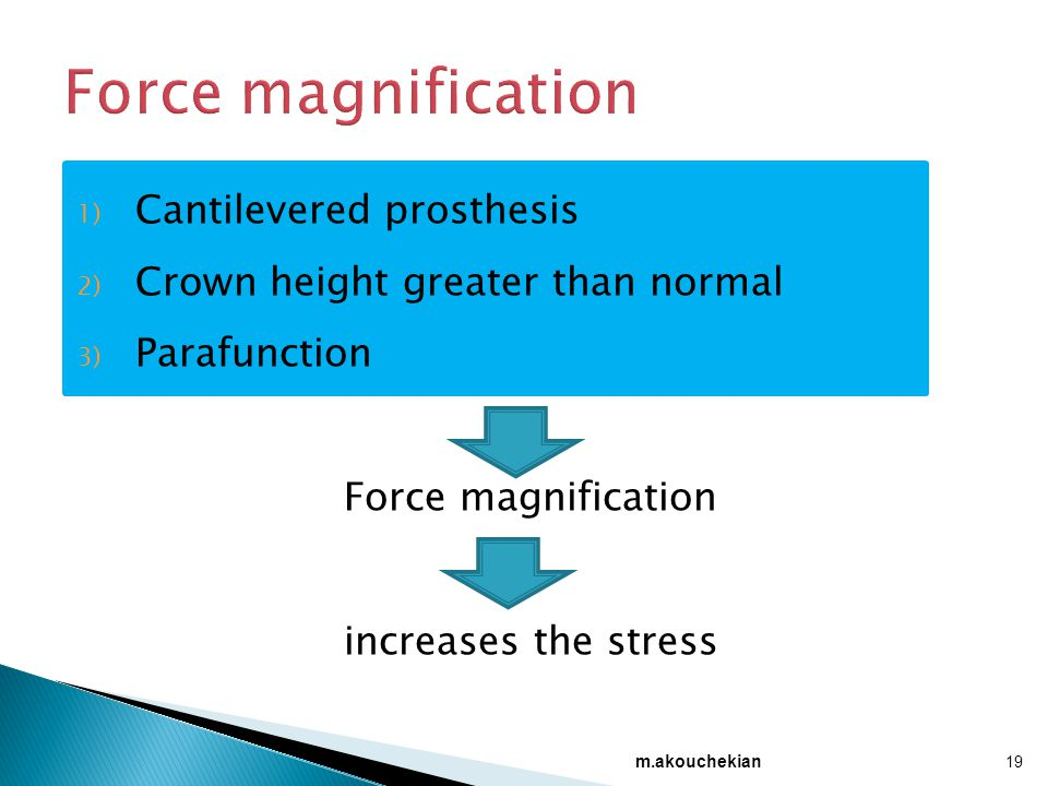 Force magnification Cantilevered prosthesis