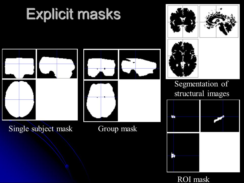 Explicit masks Segmentation of structural images Single subject mask