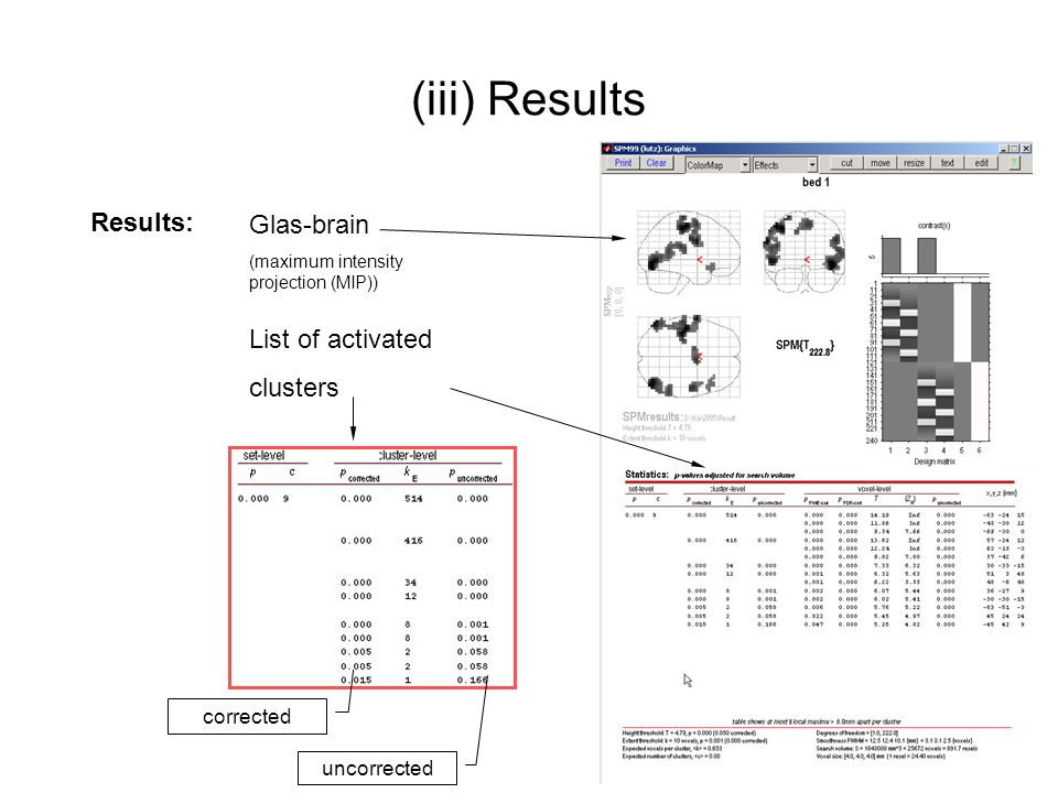 (iii) Results Results: Glas-brain List of activated clusters corrected