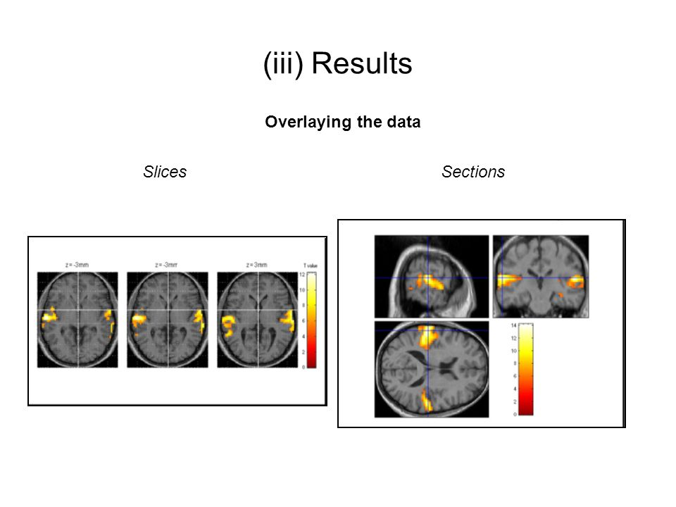 (iii) Results Overlaying the data Slices Sections