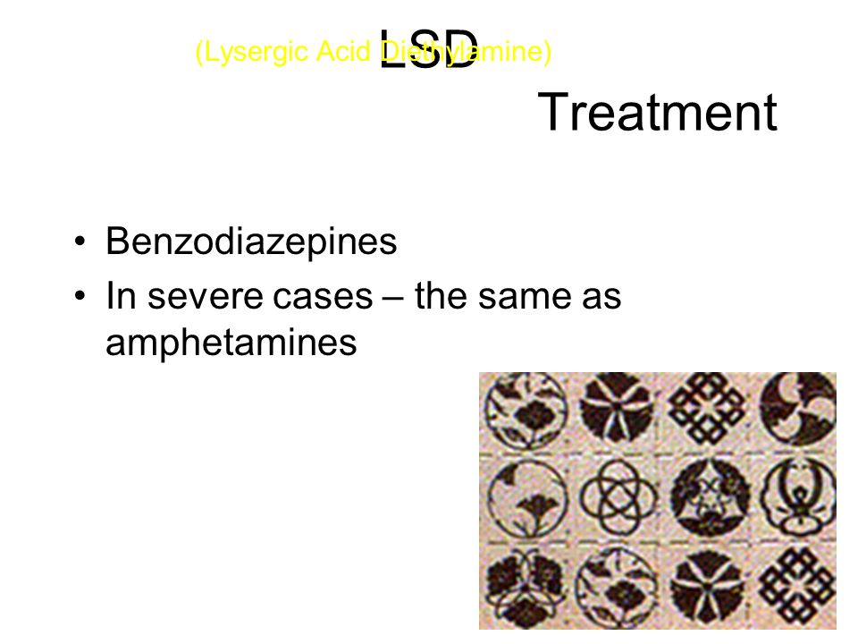 LSD Treatment Benzodiazepines