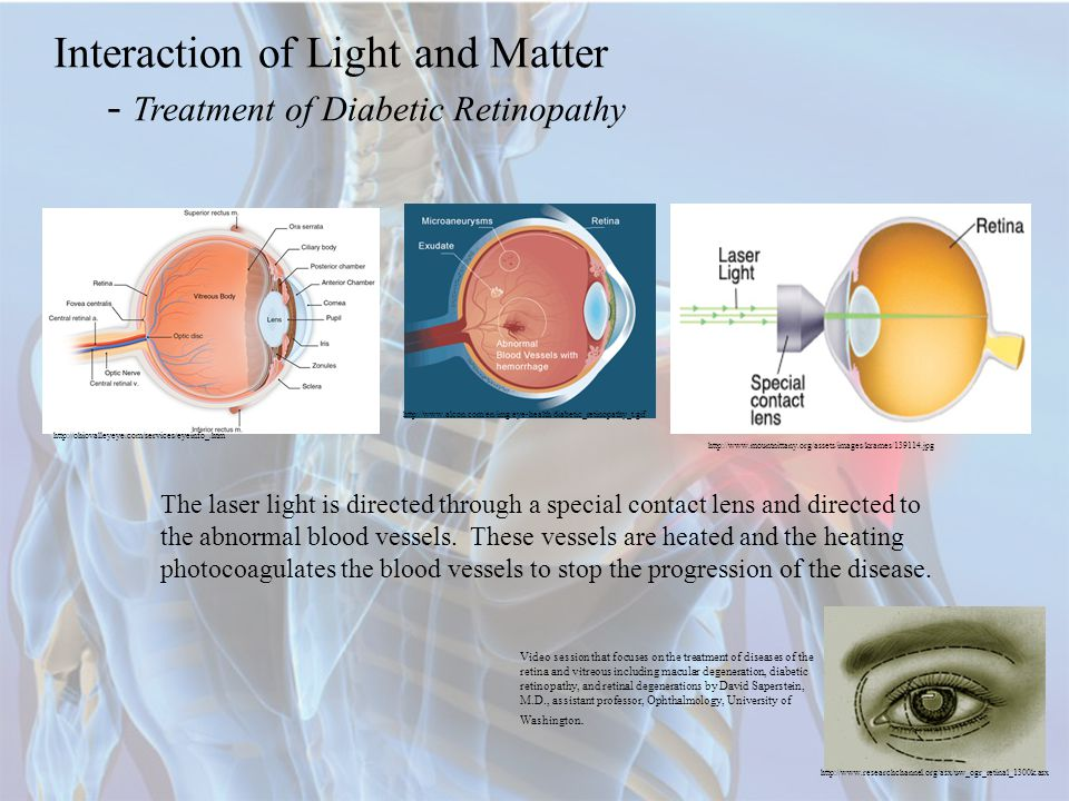 Interaction of Light and Matter - Treatment of Diabetic Retinopathy