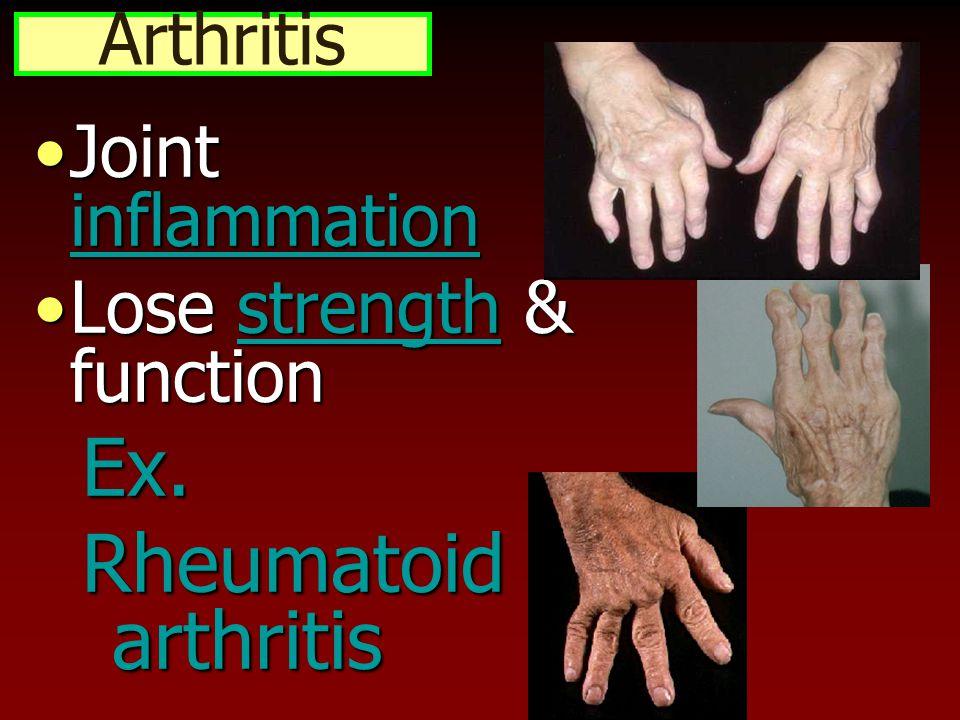 Ex. Rheumatoid arthritis Arthritis Joint inflammation