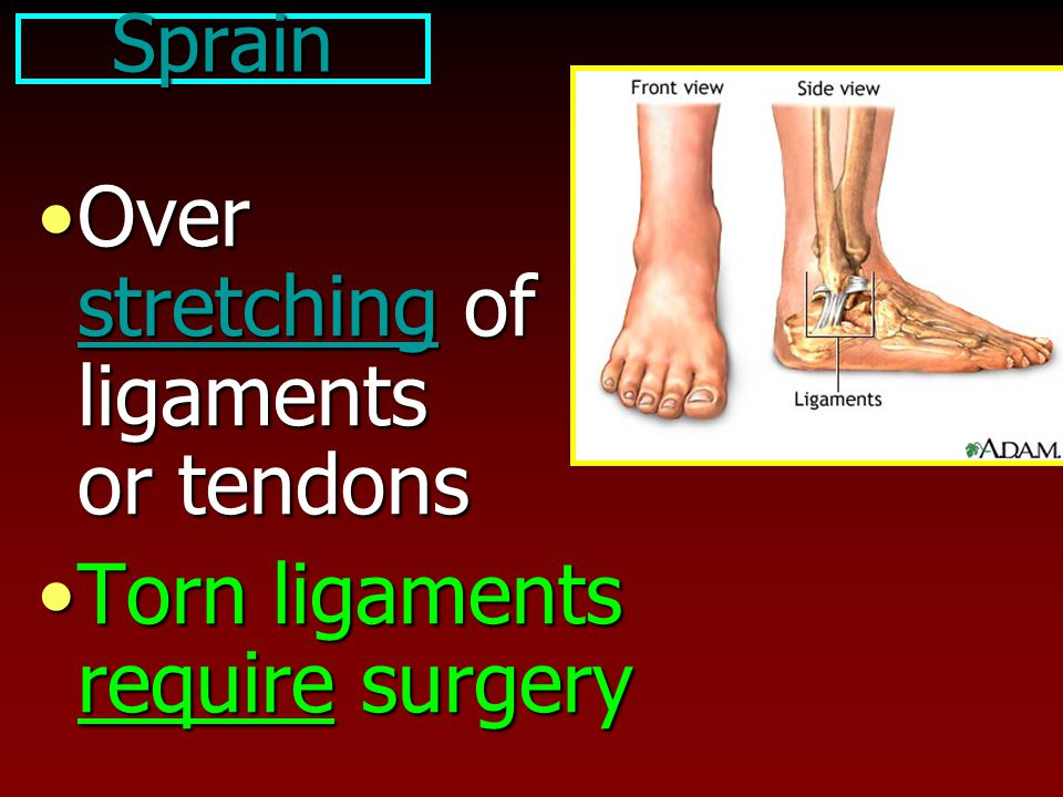 Over stretching of ligaments or tendons