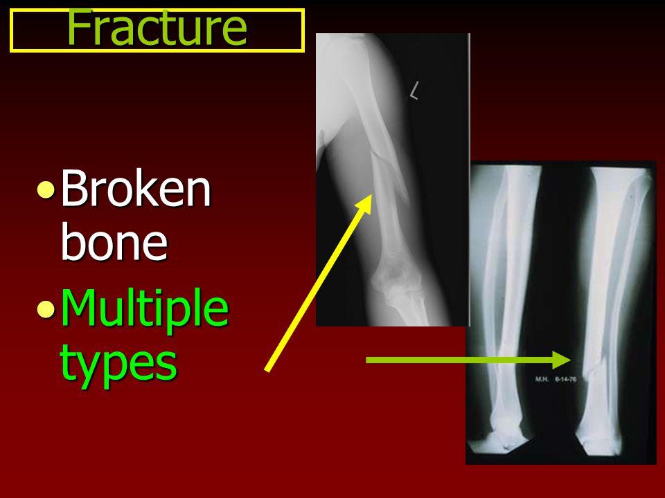 Fracture Broken bone Multiple types