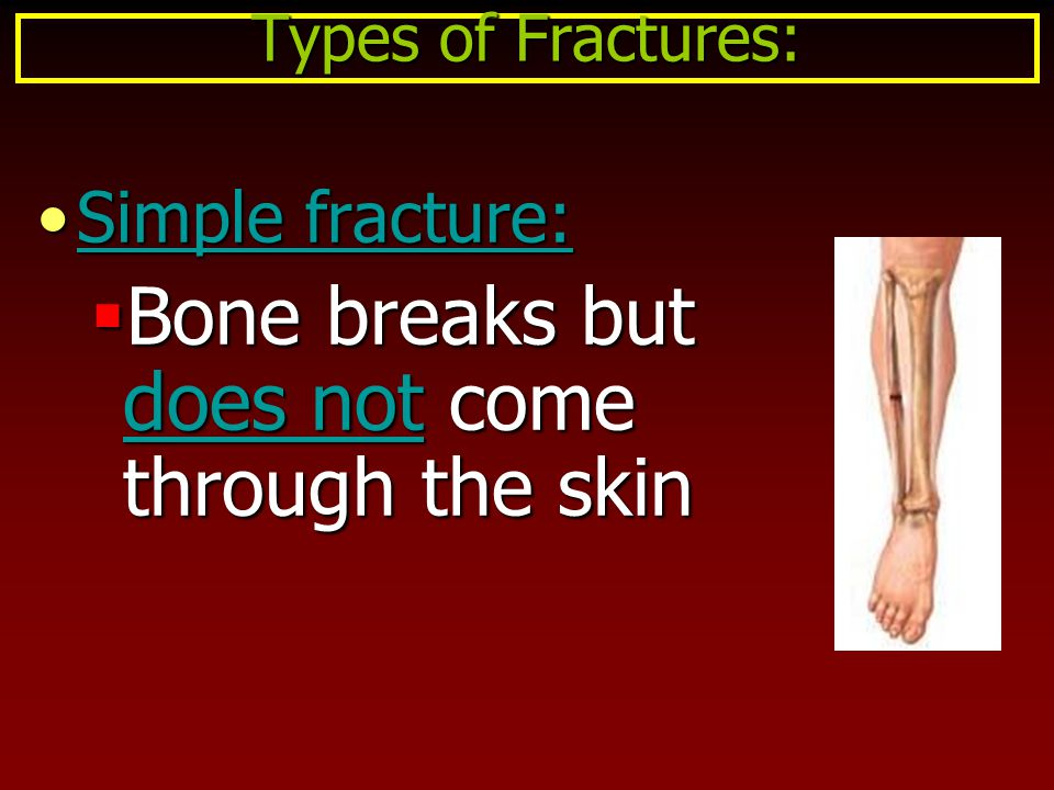 Bone breaks but does not come through the skin