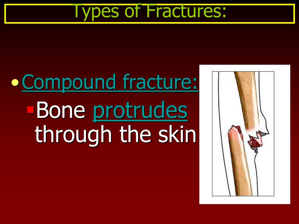 Bone protrudes through the skin