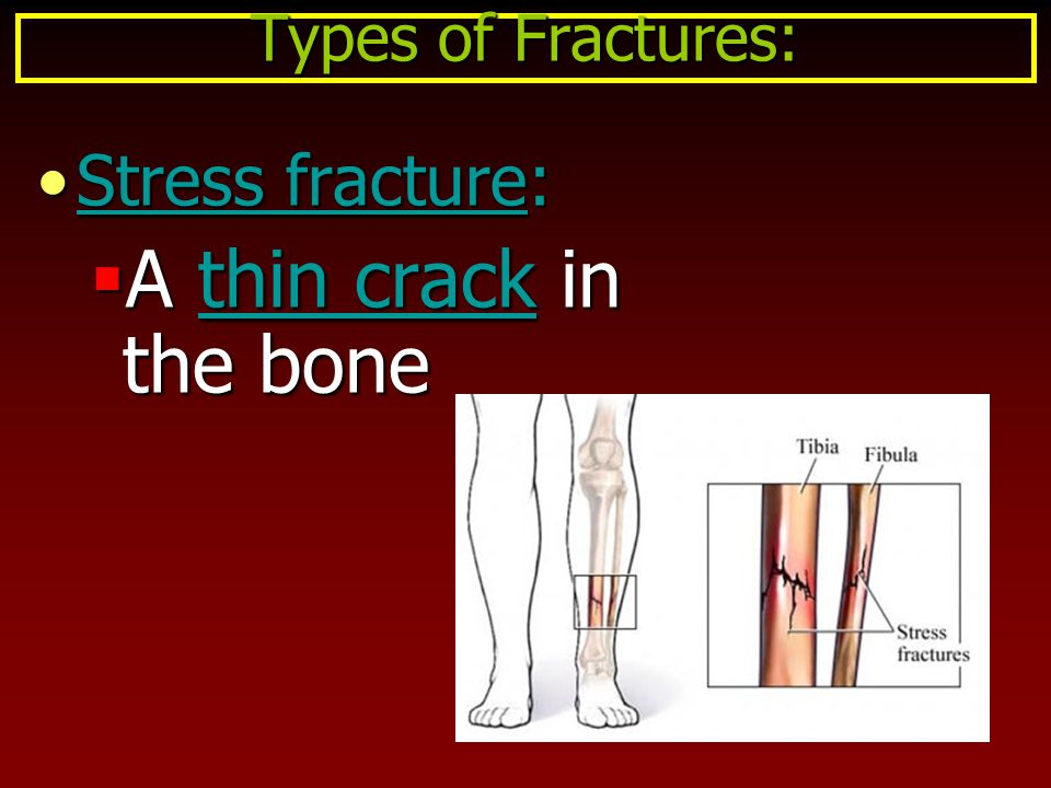 Types of Fractures: Stress fracture: A thin crack in the bone