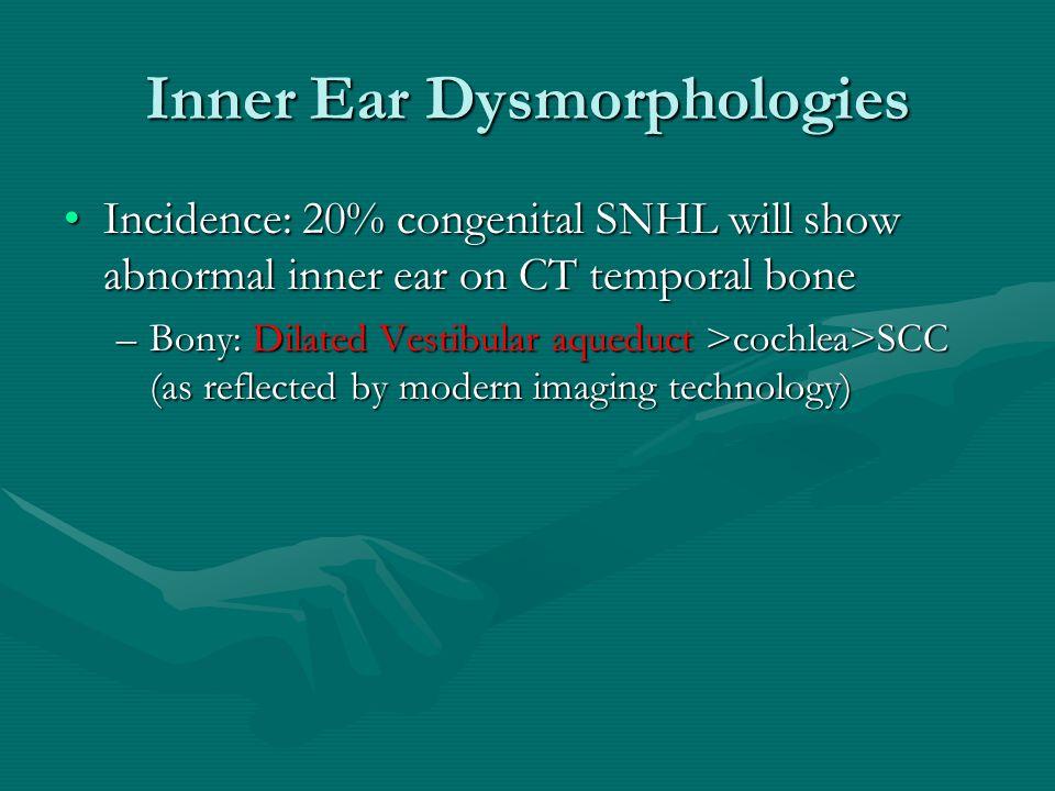 Inner Ear Dysmorphologies