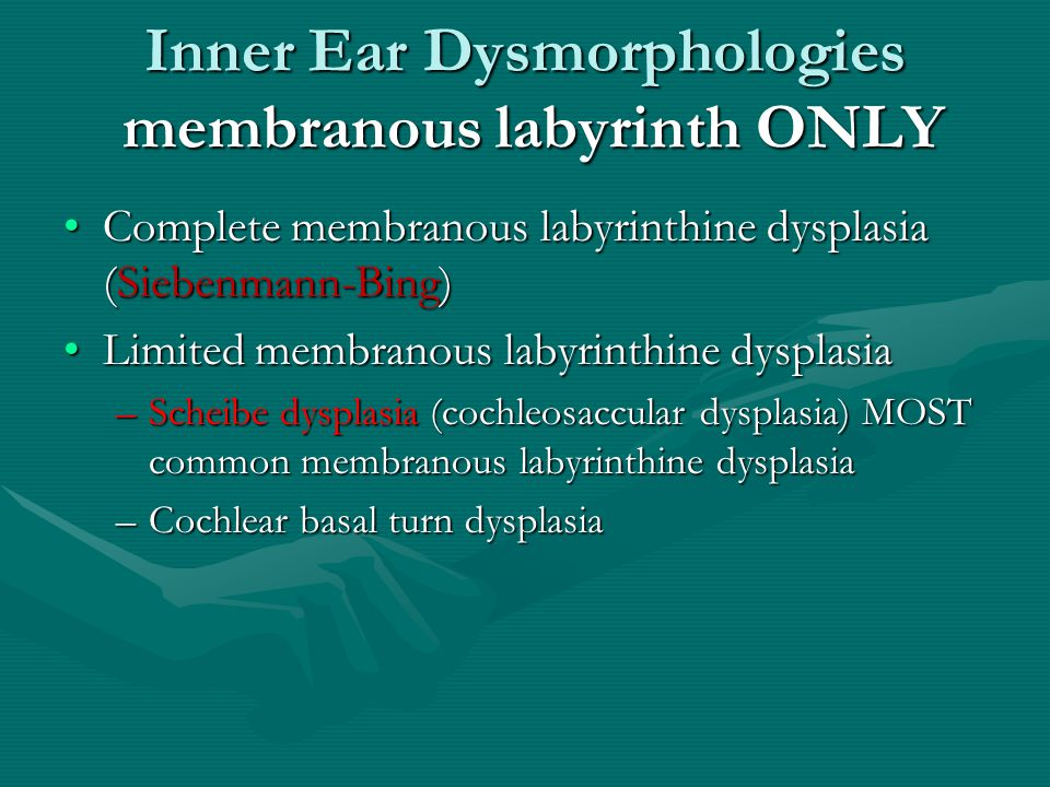 Inner Ear Dysmorphologies membranous labyrinth ONLY