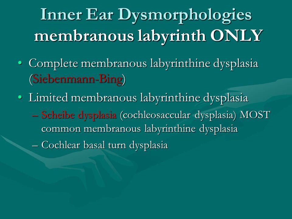 Inner Ear Dysmorphologies membranous labyrinth ONLY