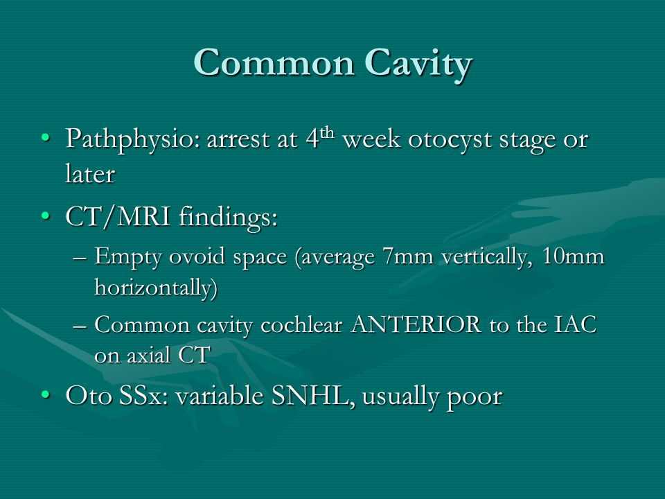 Common Cavity Pathphysio: arrest at 4th week otocyst stage or later