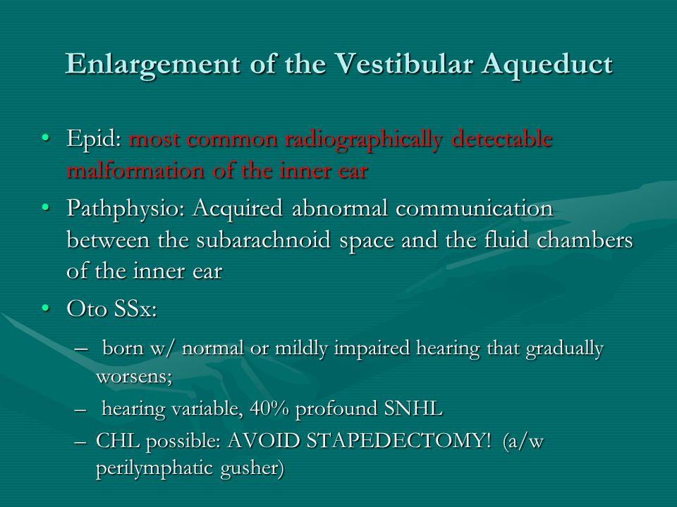 Enlargement of the Vestibular Aqueduct