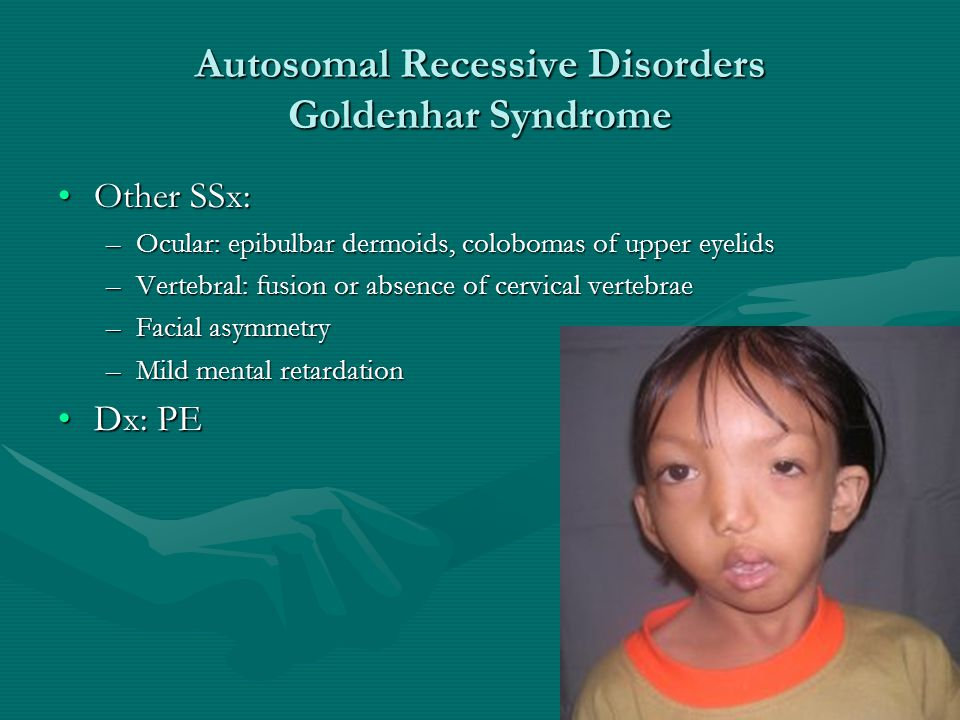 Autosomal Recessive Disorders Goldenhar Syndrome