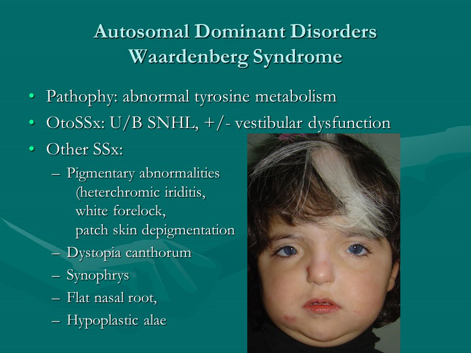 Autosomal Dominant Disorders Waardenberg Syndrome