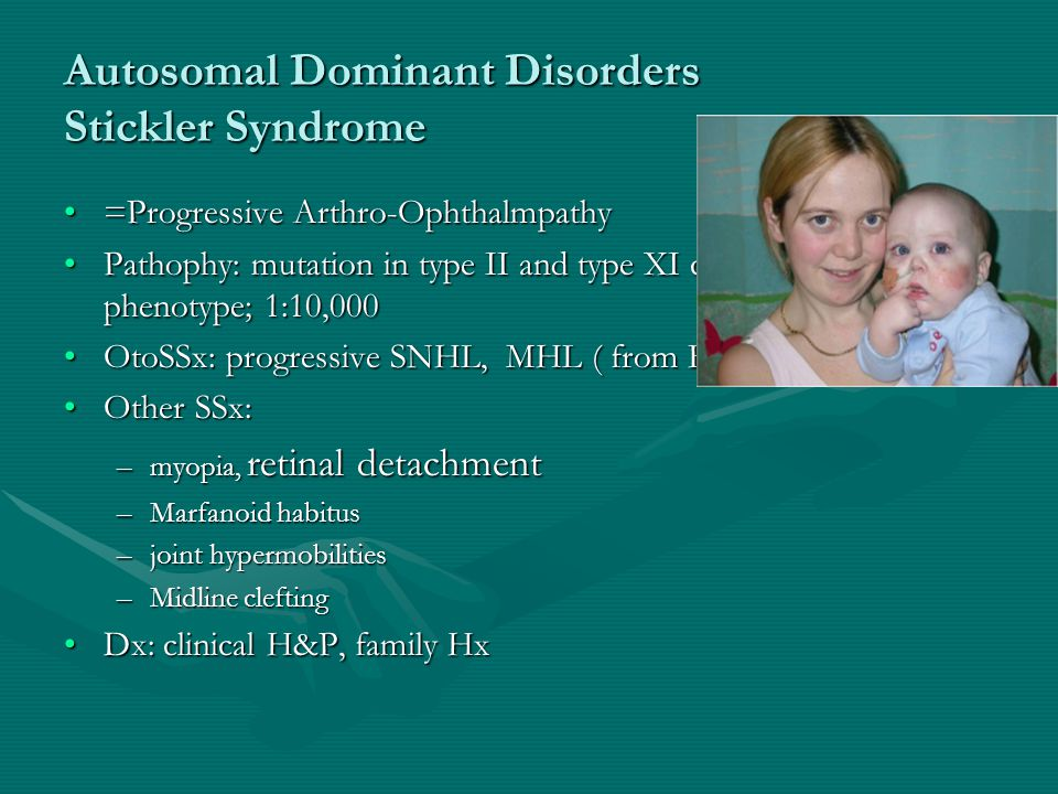 Autosomal Dominant Disorders Stickler Syndrome