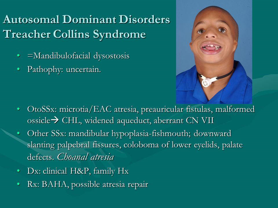 Autosomal Dominant Disorders Treacher Collins Syndrome