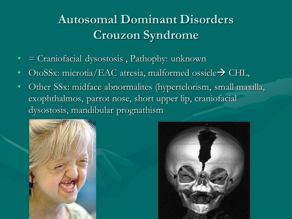 Autosomal Dominant Disorders Crouzon Syndrome