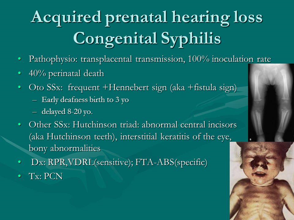 Acquired prenatal hearing loss Congenital Syphilis