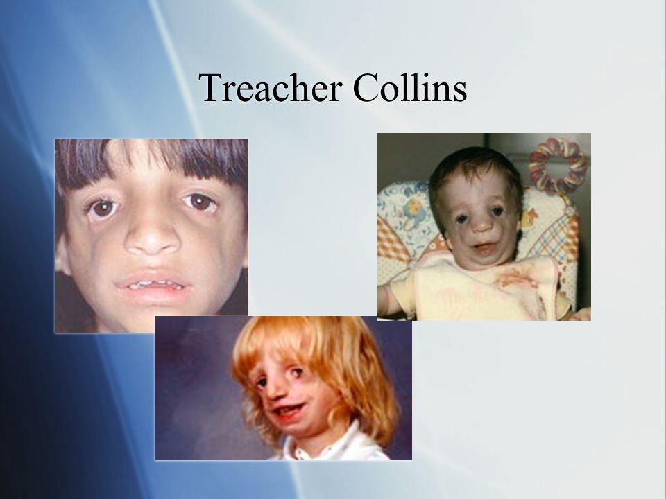 Treacher Collins