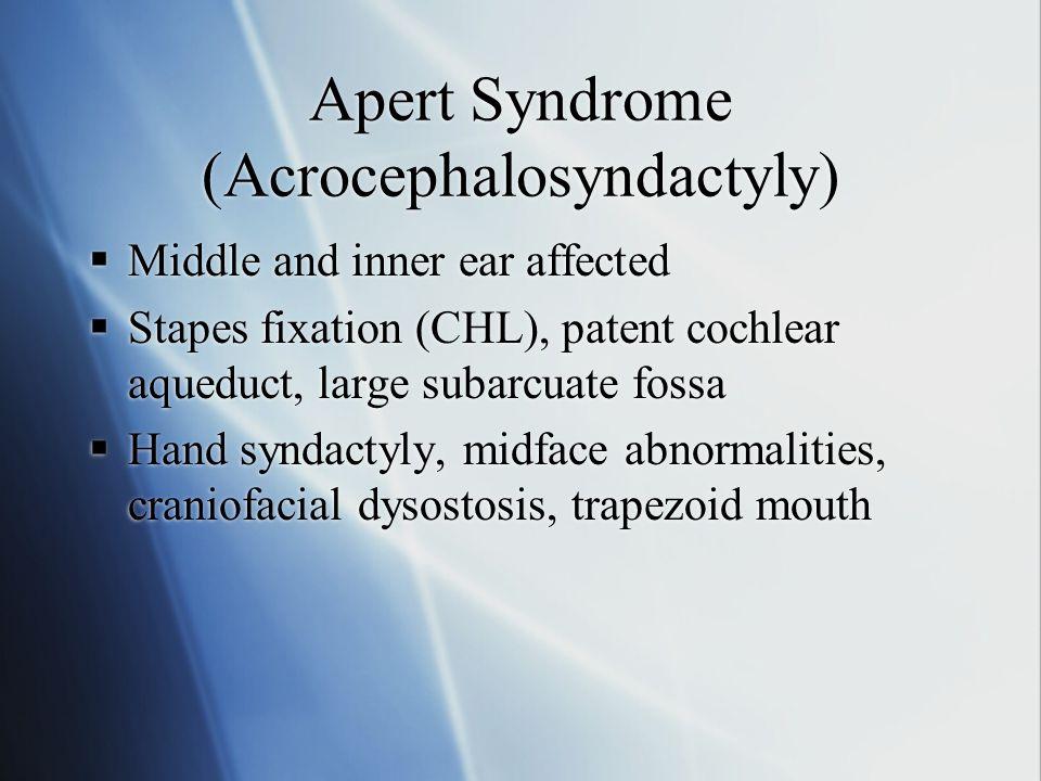 Apert Syndrome (Acrocephalosyndactyly)