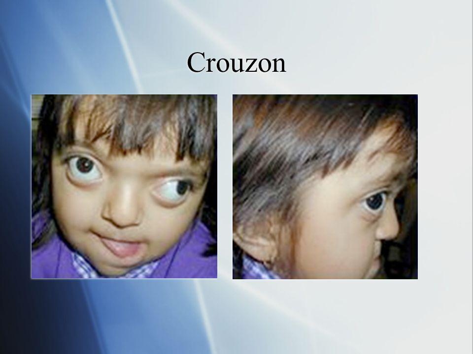 Crouzon