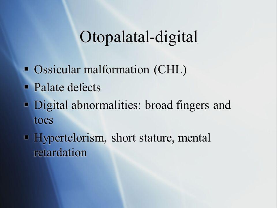 Otopalatal-digital Ossicular malformation (CHL) Palate defects