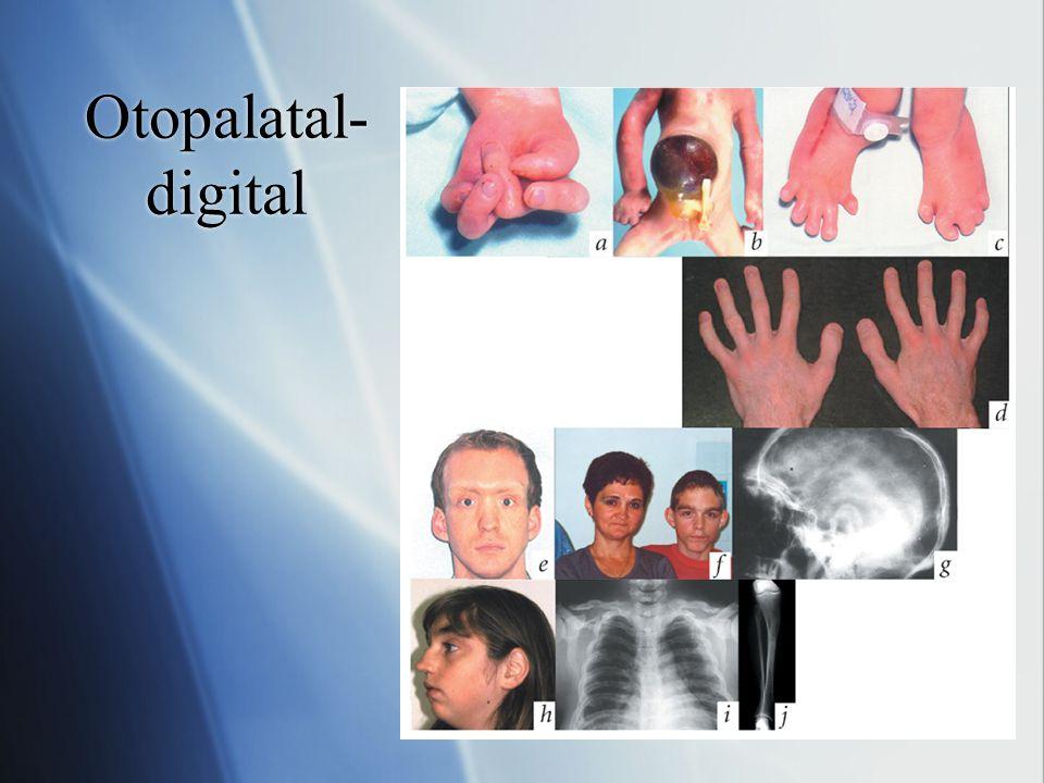 Otopalatal-digital