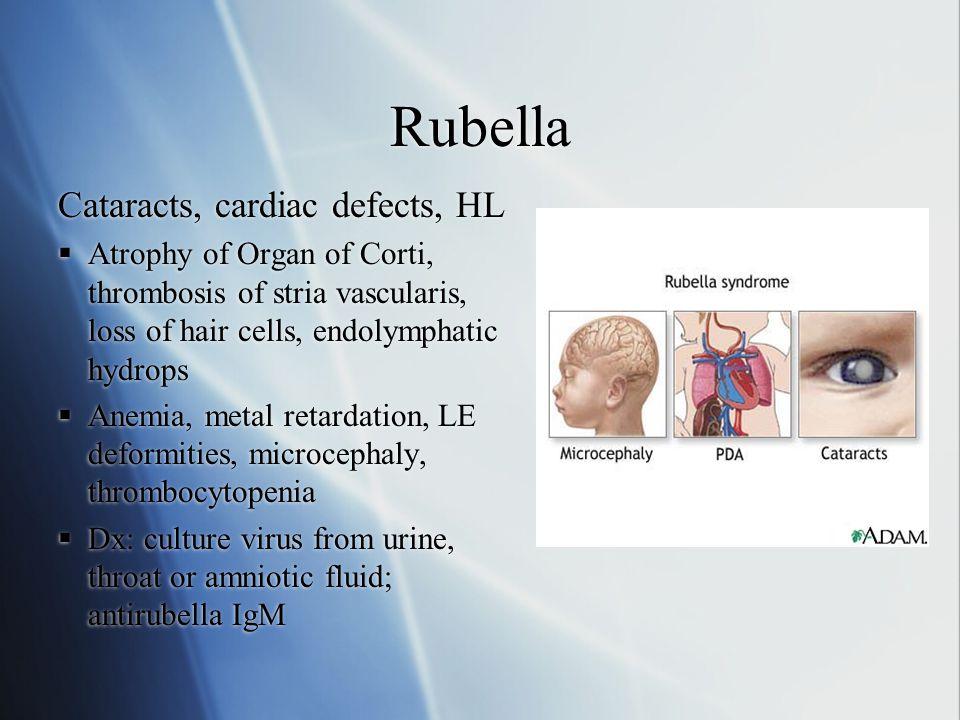 Rubella Cataracts, cardiac defects, HL