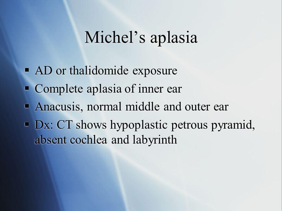 Michel's aplasia AD or thalidomide exposure